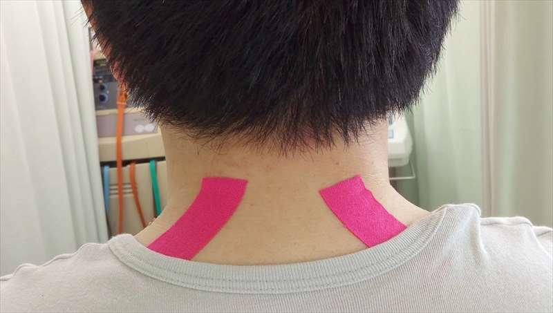 週末型頭痛へのキネシオテーピング